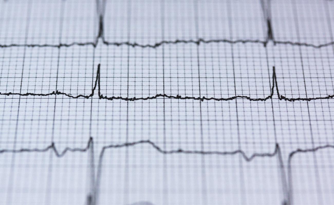 Invierno aumenta riesgo de infarto